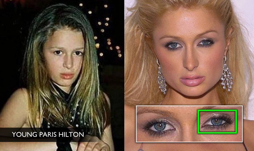 Project Monarch - Droopy Eyelid - Paris Hilton