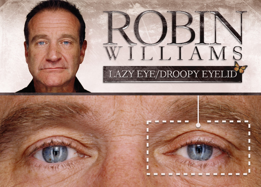 Project Monarch - Droopy Eyelid - Robin Williams