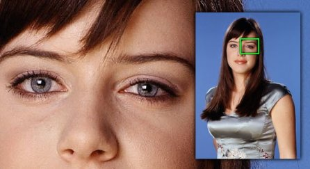 Project Monarch - Droopy Eyelid - Michelle Ryan